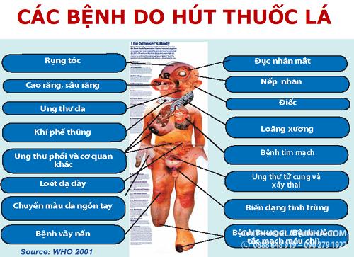 cac-benh-do-hut-thuoc-la